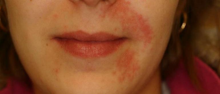 псориаз на лице чем лечить