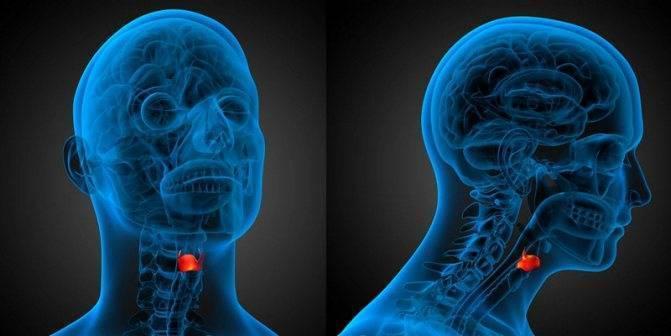 Как распознать симптомы рака горла на разных стадиях заболевания