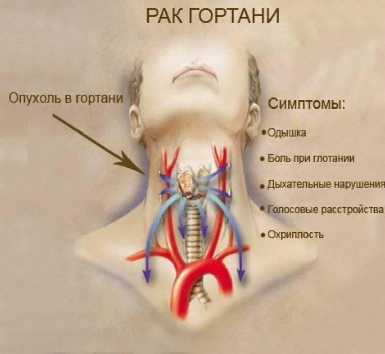 Рак  гортани. причины, симптомы, диагностика и лечение заболевания :: polismed.com