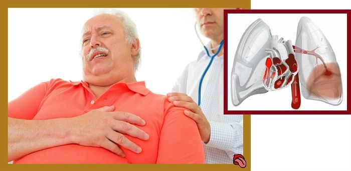 Кашель при сердечной недостаточности: симптомы и лечение