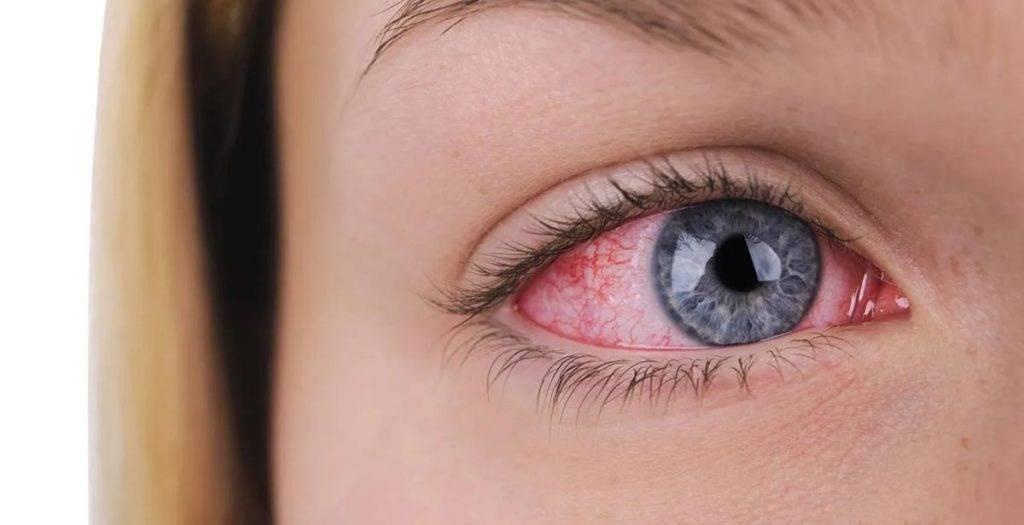 Почему краснеют глаза и болят от линз