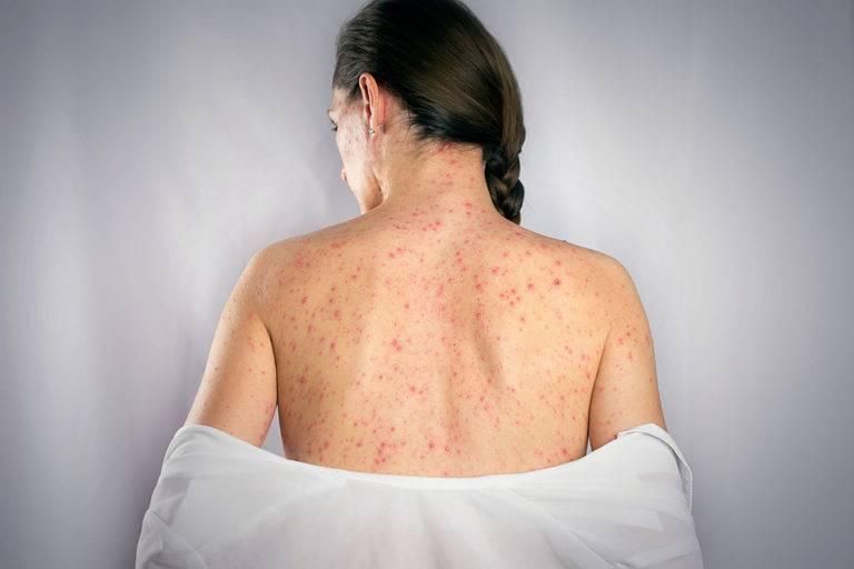 Симптомы и лечение герпеса на спине