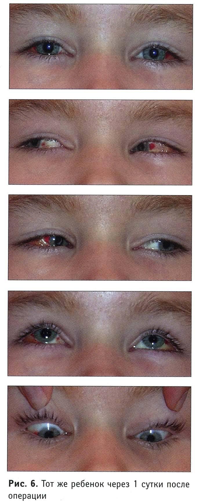 операция на глаза косоглазие