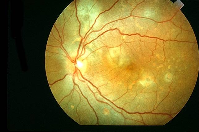 Что такое хориоретинит глаза?