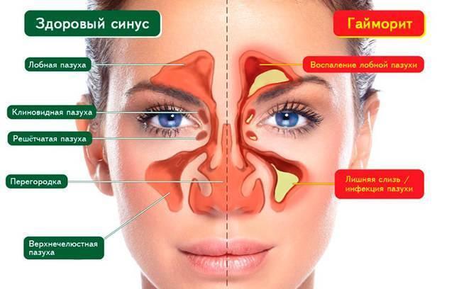 Синусит и гайморит: в чем разница, чем отличается лечение, препараты