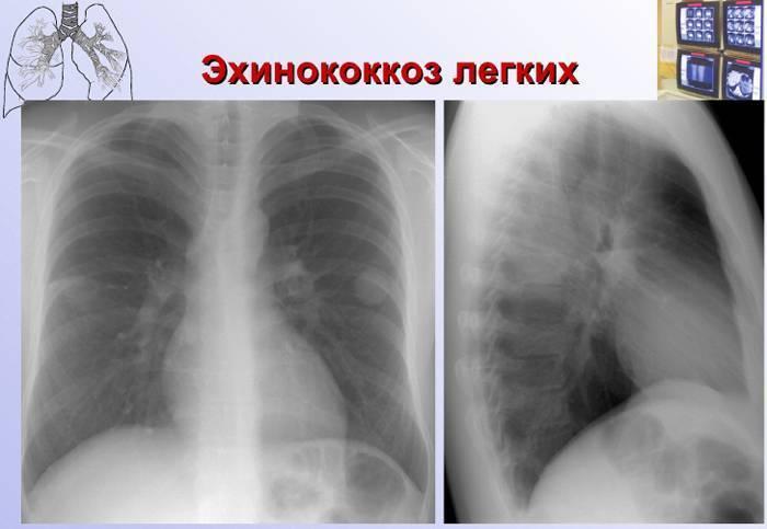 черви в легких человека