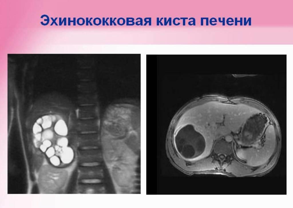 альвеолярный эхинококкоз