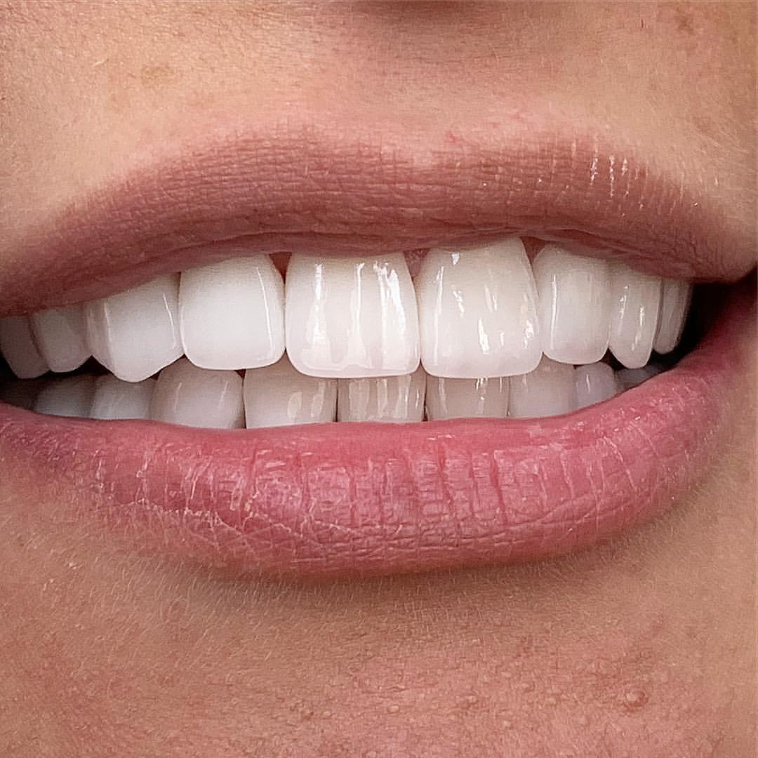 можно ли винирами исправить кривые зубы