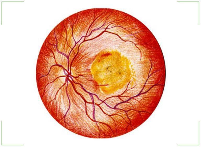 макулодистрофия сетчатки