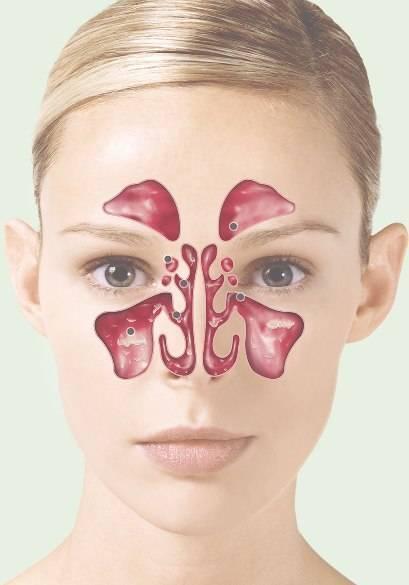 основная пазуха носа