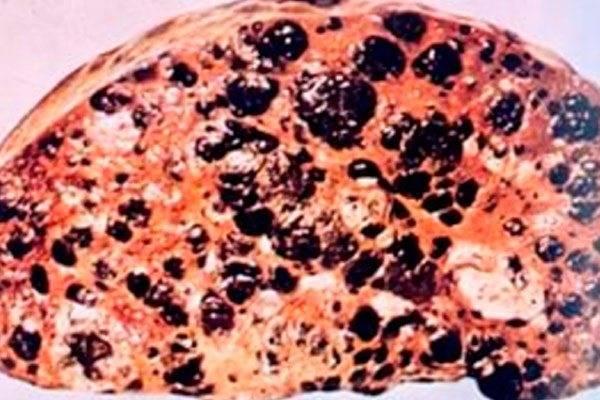 метастазы в легких и печени продолжительность жизни