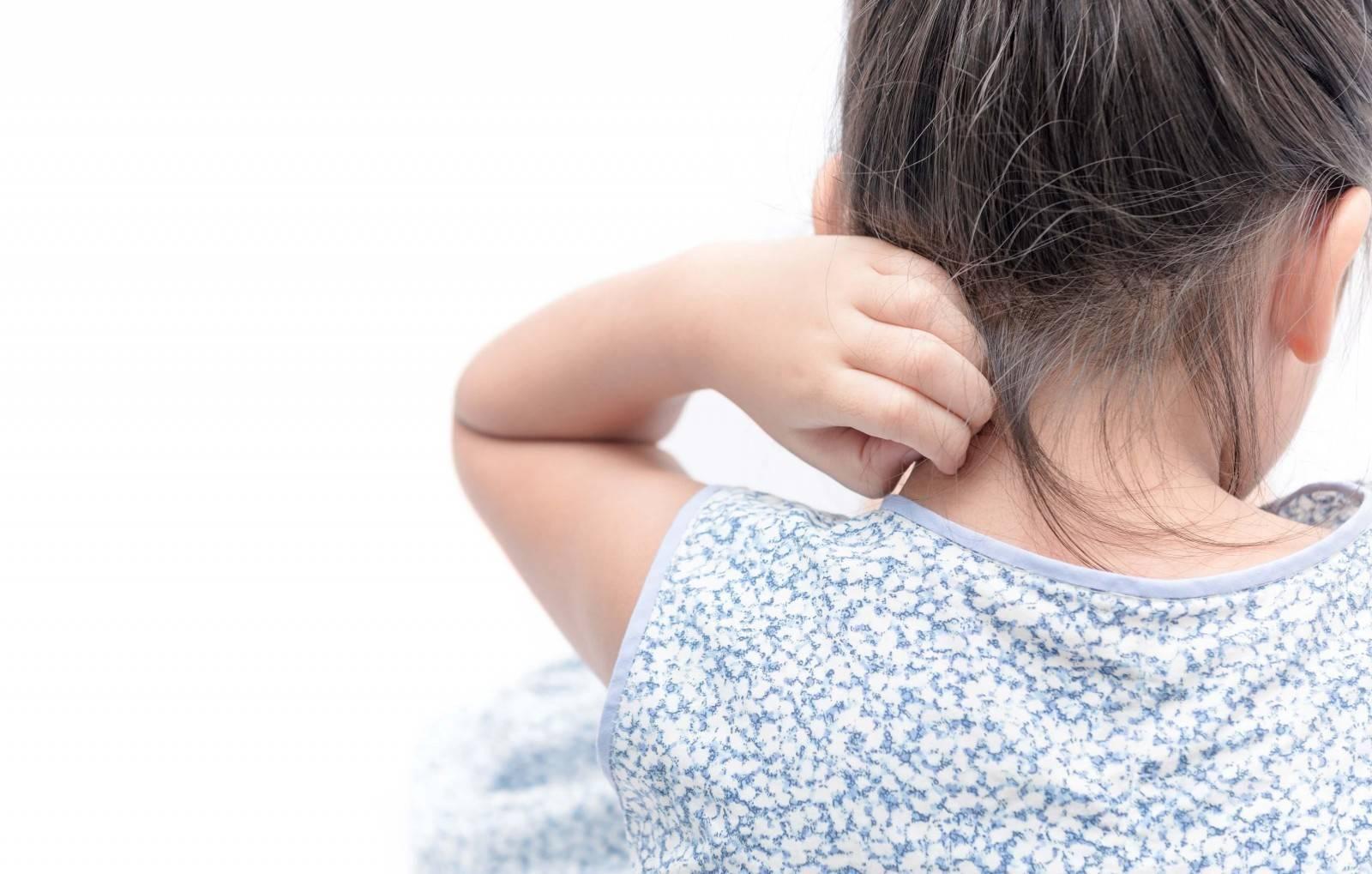 псориаз у грудных детей