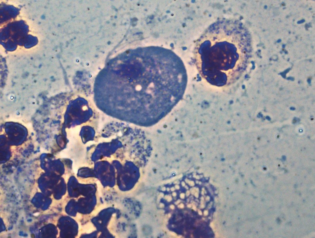 Анализ на трихомониаз: всевозможные способы обнаружить болезнь