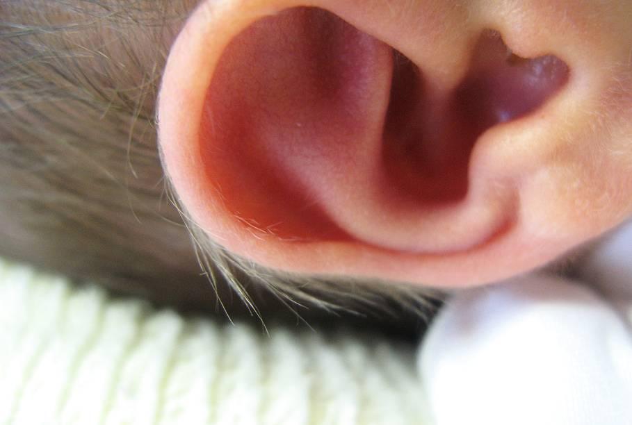 запах из ушей у ребенка