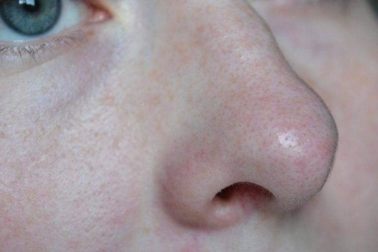 прыщик в носу чем лечить