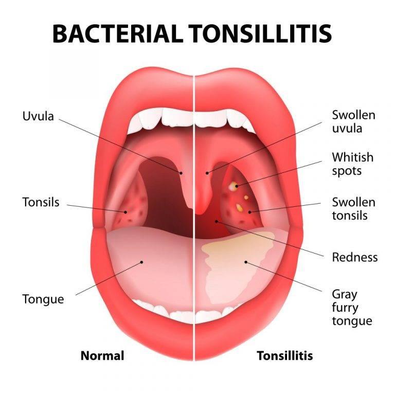 Симптомы и лечение тонзиллита у детей при температуре