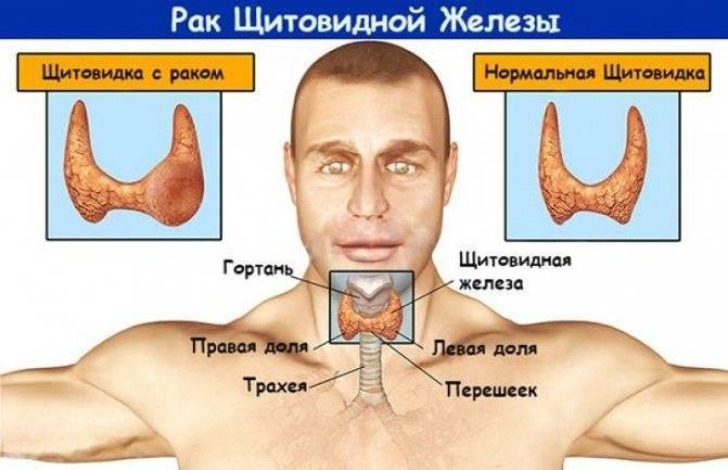 метастазы папиллярного рака щитовидной железы