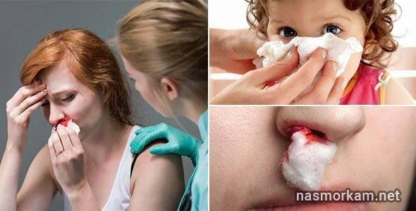 Почему идет кровь из носа у взрослого в т.ч. по ночам и утром - причины, первая помощь, профилактика