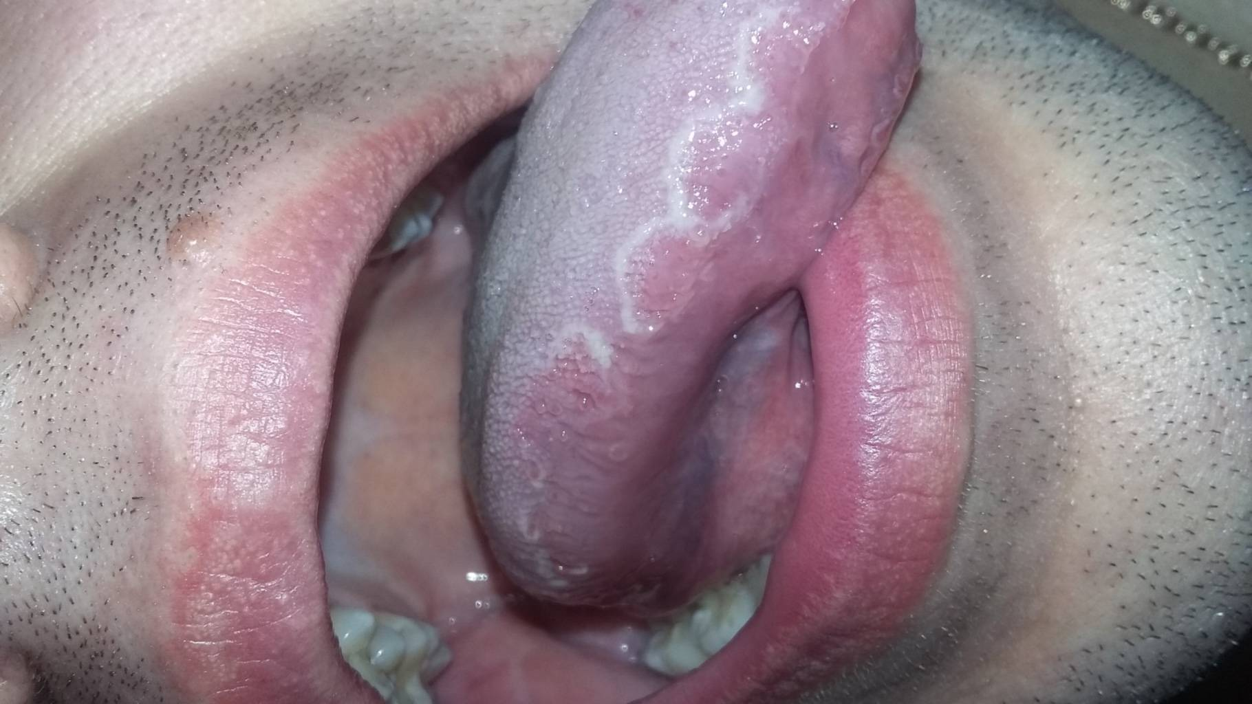сифилис гортани