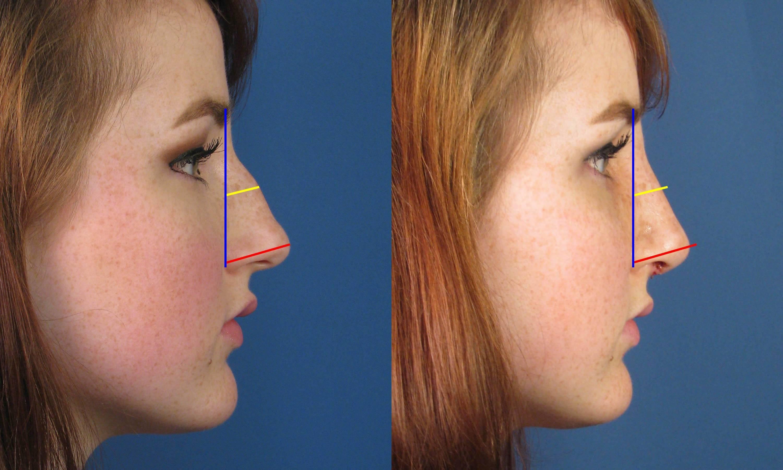 Как уменьшить нос в домашних условиях - упражнения и секреты макияжа, чтобы сузить, приподнять кончик, сделать маленьким, изменить нос картошкой