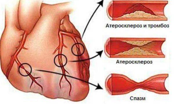 операция атеросклероза аорты