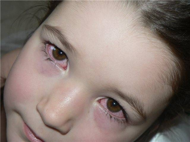 почему по утрам красные глаза