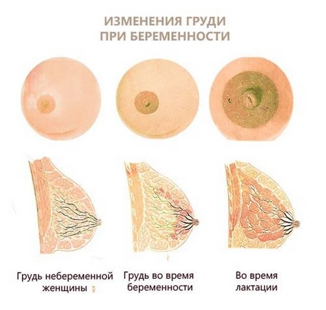 Когда начинает болеть грудь после зачатия