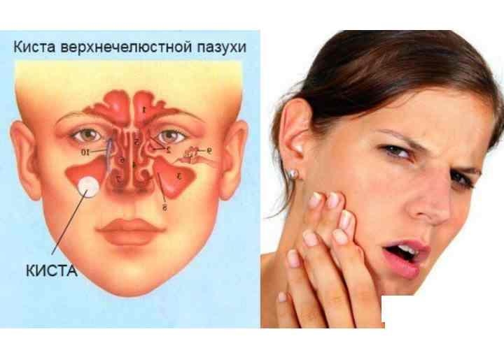 Киста гайморовой пазухи одна из причин насморка