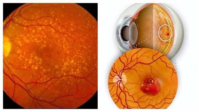 атрофия сетчатки глаза