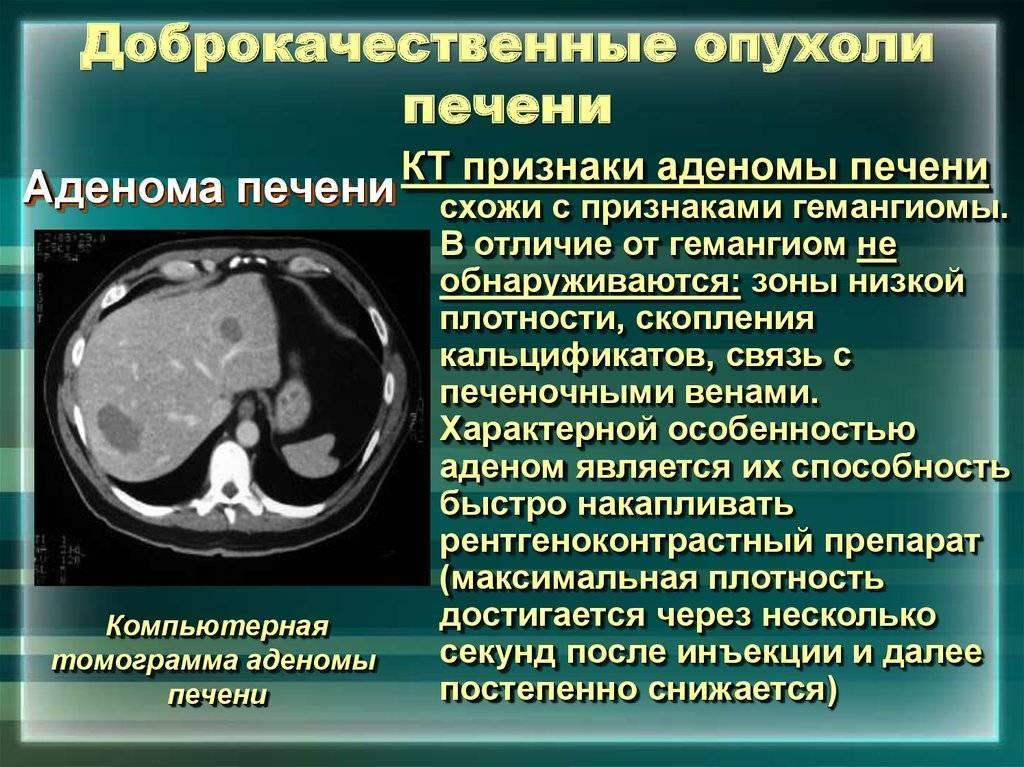 опухоль в печени прогноз