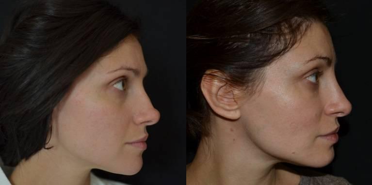 Как визуально уменьшить нос с помощью макияжа: советы и хитрости