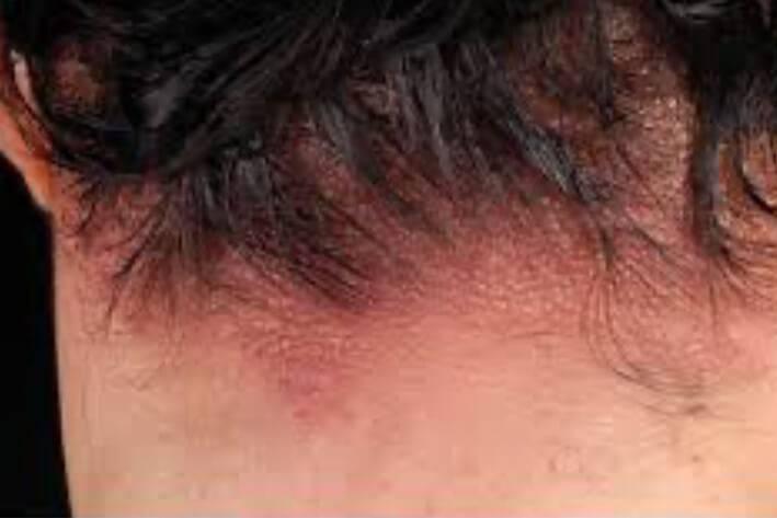 контактный дерматит на голове