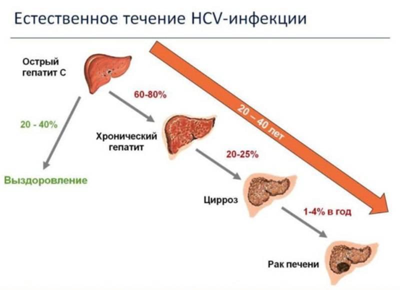 Пути передачи, симптомы, лечение и профилактика хронического гепатита д