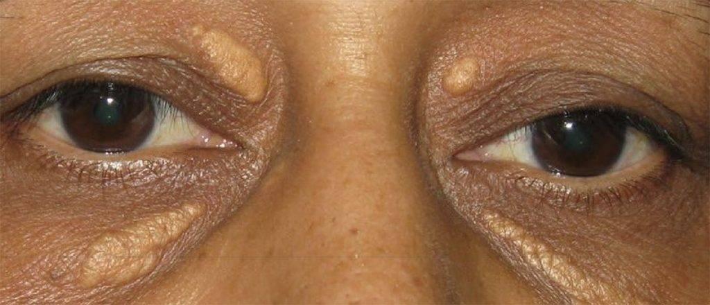 Ксантелазмы и ксантомы: признаки, лечение, фото