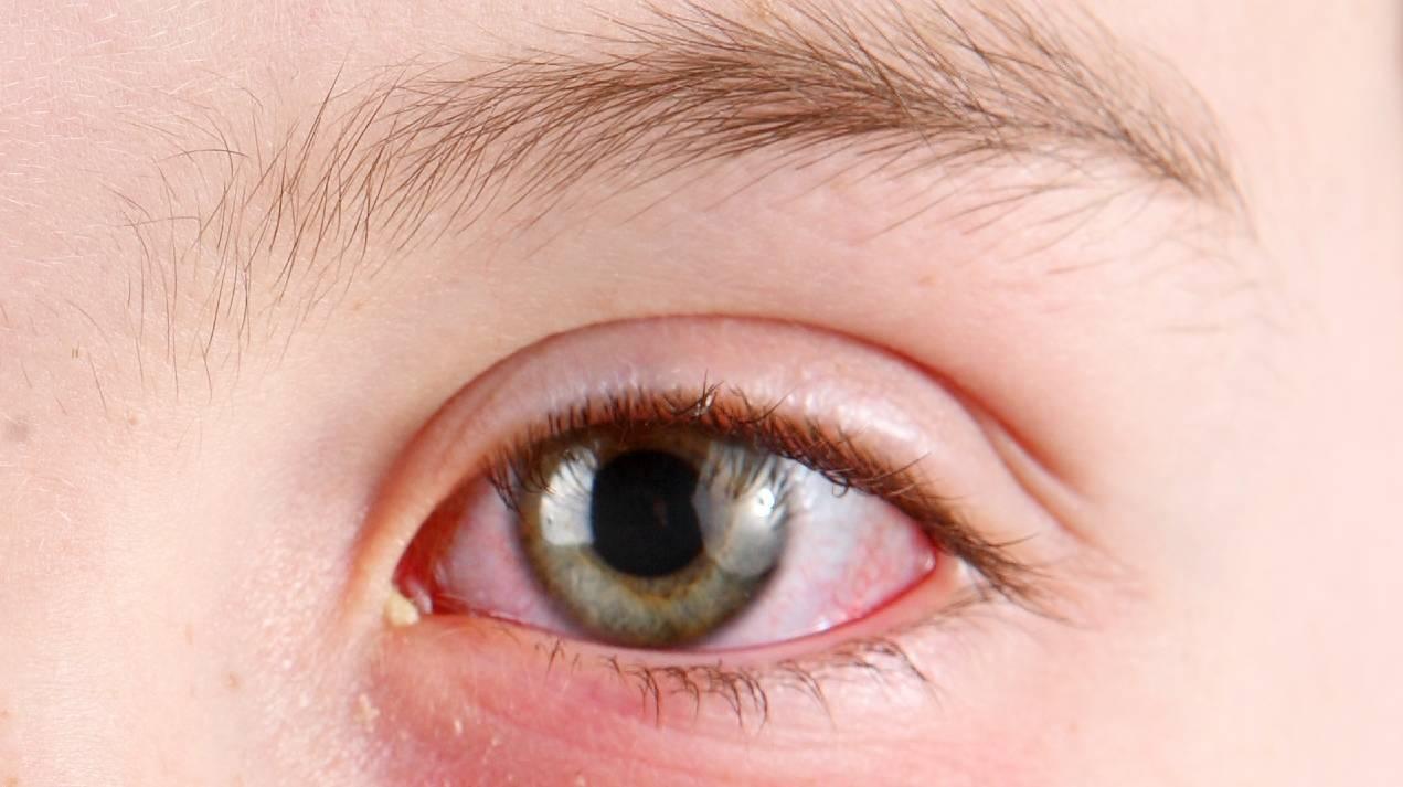 почему с утра красные глаза