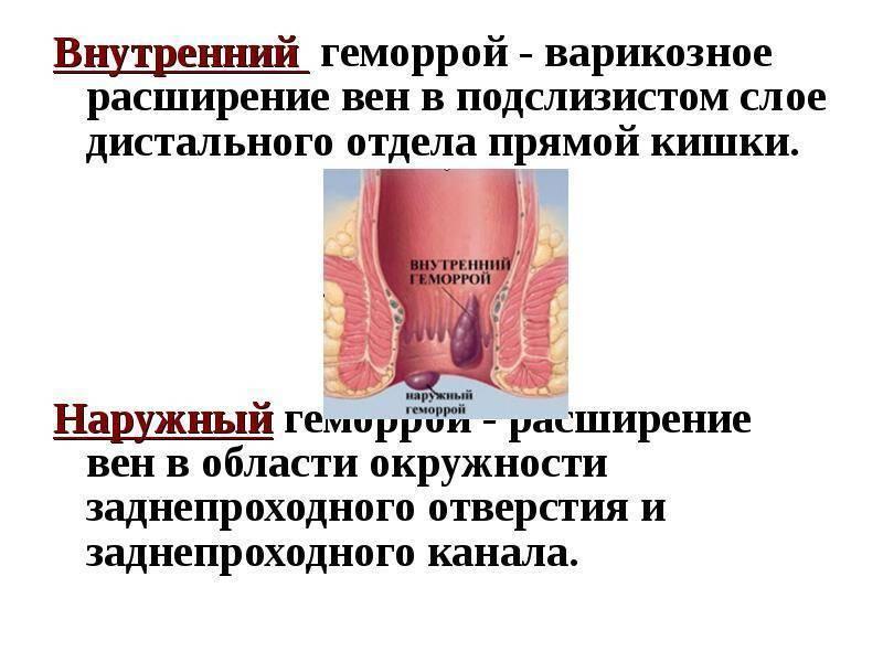 внутренний геморрой с осложнениями