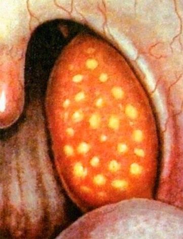 Заразна ли фолликулярная ангина, и если заразна, то сколько дней?