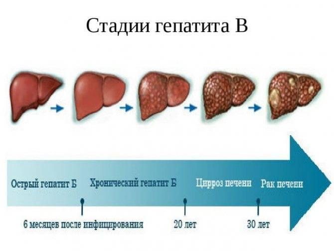 как восстановить печень при гепатите с