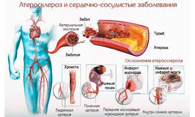 Атеросклероз. лечение атеросклероза народными средствами