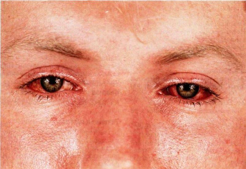 хламидиоз глаз лечение