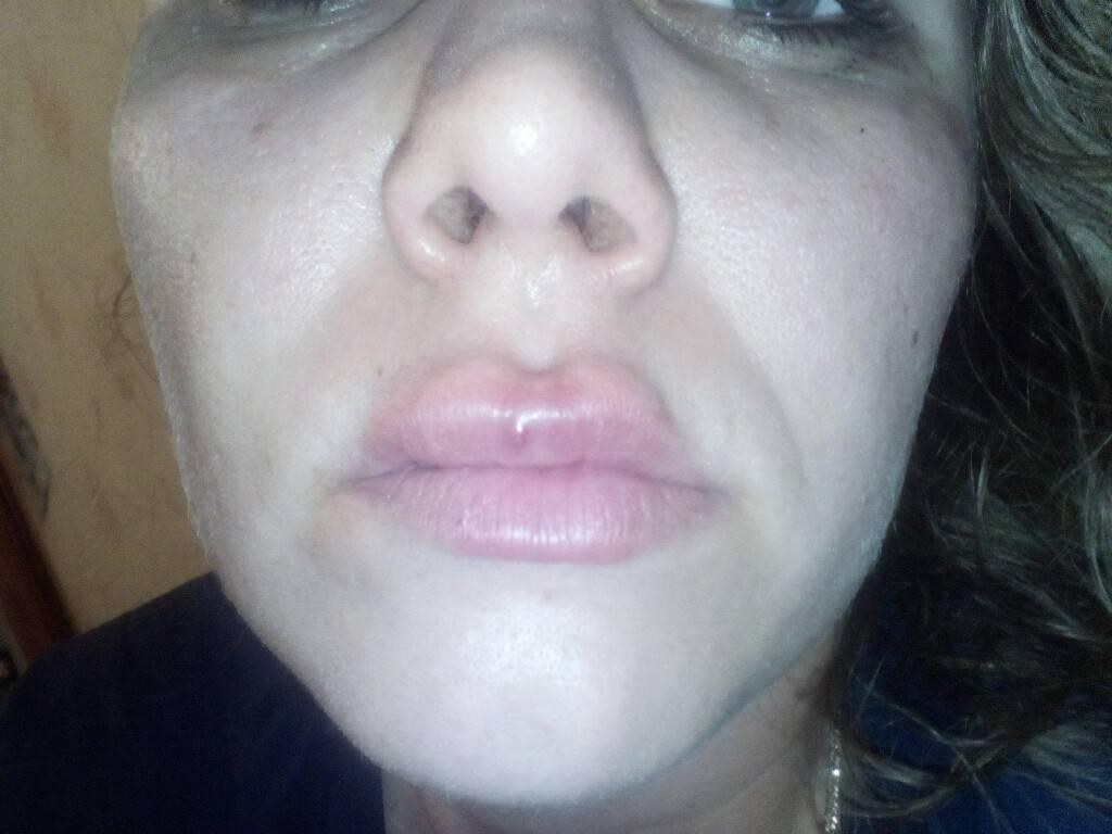 Сильный отек губ при герпесе