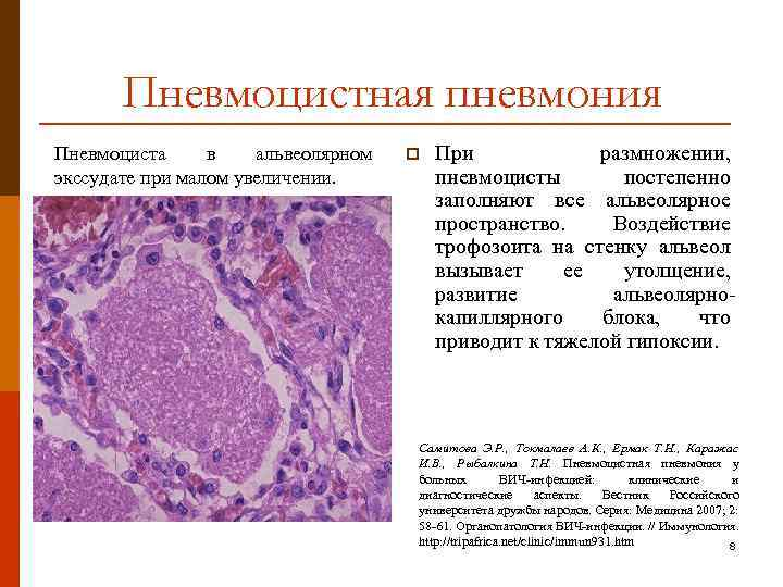 Пневмоцистоз: причины, общие принципы диагностики и лечения