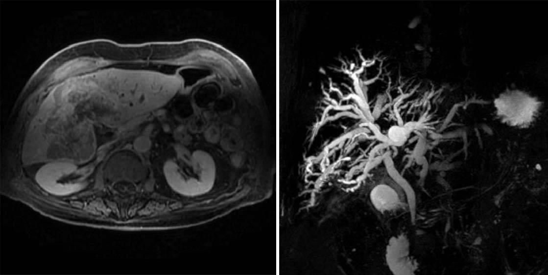 Особенности развития гепатоцеллюлярного рака печени