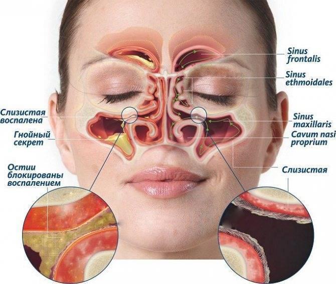 болит переносица носа