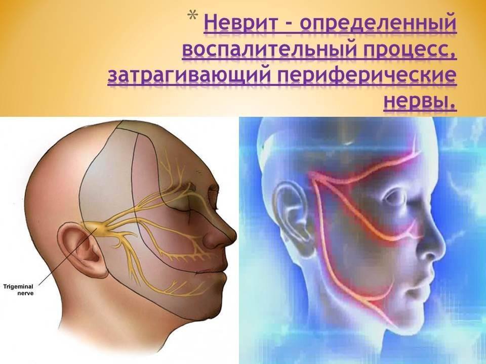 тригеминальная невралгия симптомы