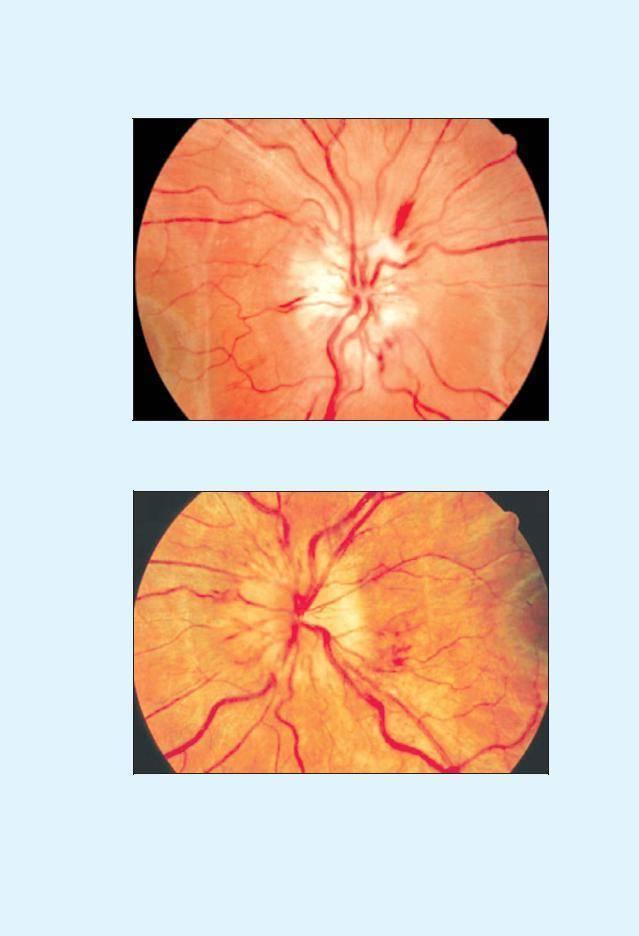 неврит глазодвигательного нерва