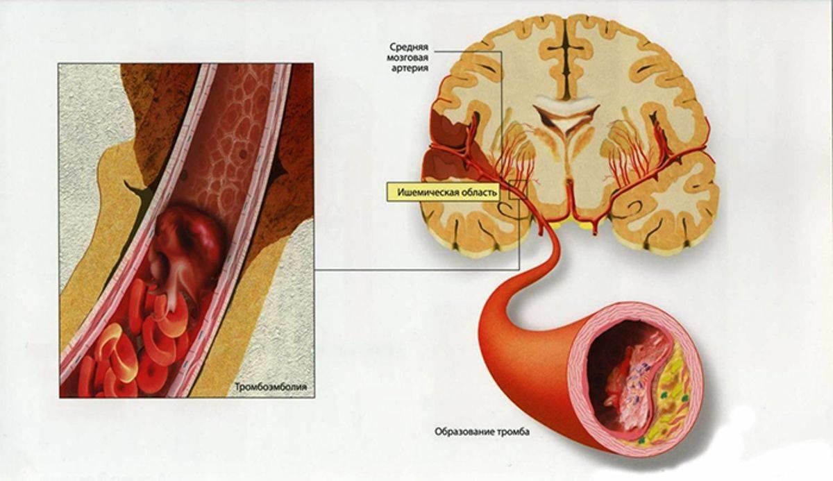 Полное описание атеросклероза сосудов головного мозга: причины, лечение, прогноз