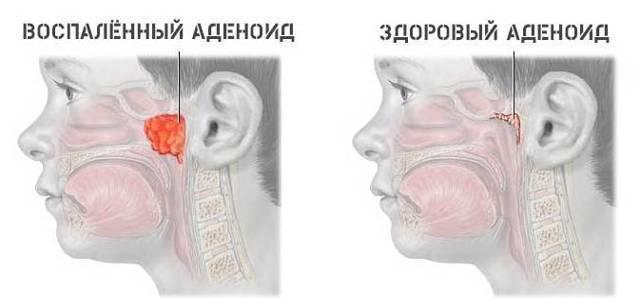 аденоиды лечить или удалять