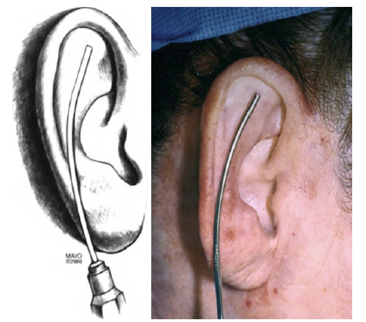 болят хрящи ушей