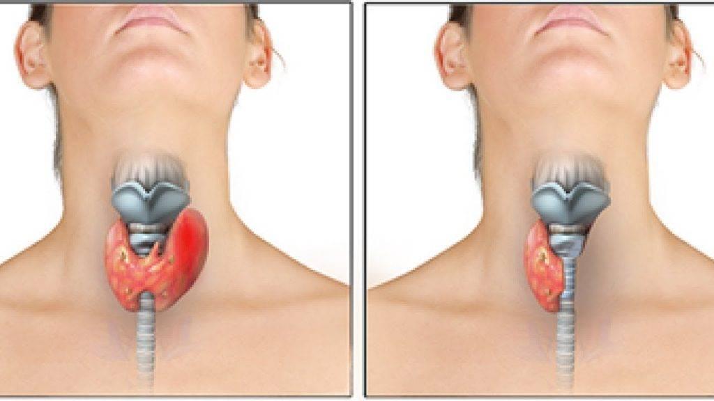 восстановление после удаления щитовидной железы